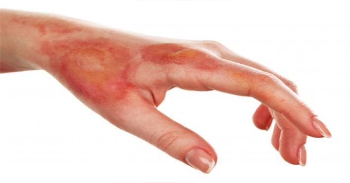 نصائح مهمة للتعامل مع حروق الجلد
