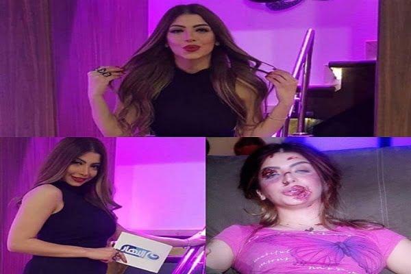مذيعة تتعرض لحادث بسيارتها خلال دفاعها عن قدرة المرأة بالقيادة !