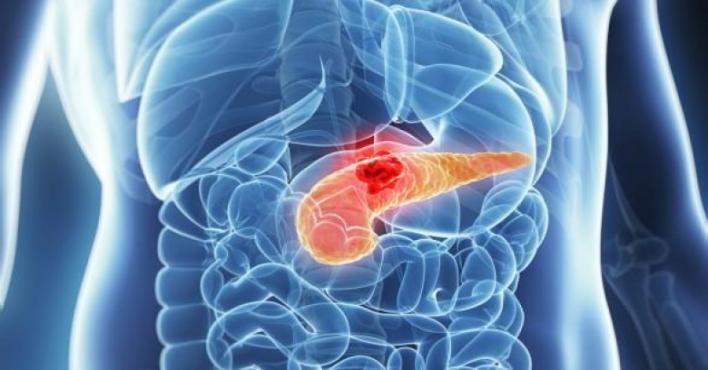 تطبيق هاتفي جديد لكشف سرطان البنكرياس