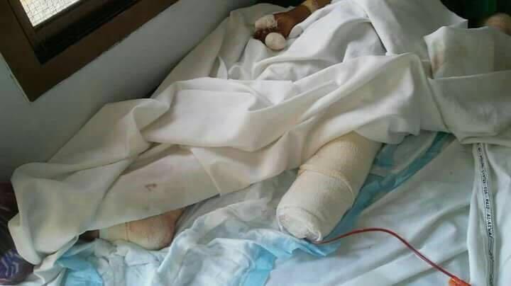"""إصابة طفلتين إحداهما بـ""""بتر الساق"""" في انفجار لغم لميليشيات الحوثي"""