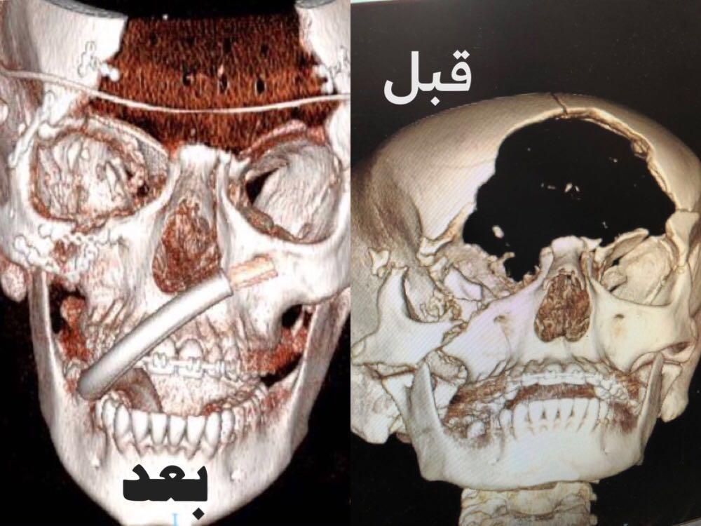 """إنجاز طبي متميز..""""ترميم جبهة"""" فتاة بمدينة الملك سعود الطبية"""