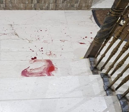 طعن سيدة سبعينية في الصدر داخل منزلها بأبو عريش
