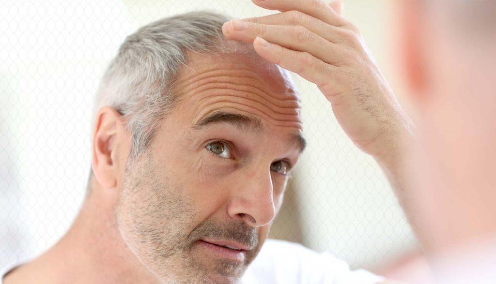 هل يتساقط شعرك في الصيف؟ إليك الأسباب والحلول