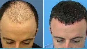 التقنيات المستخدمة في عمليات زراعة الشعر