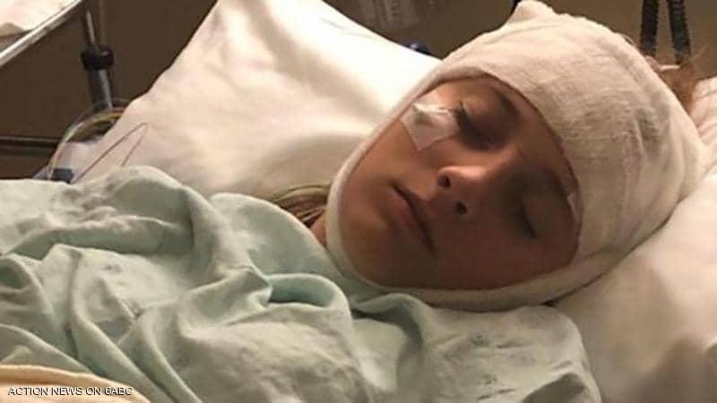 """حالة طبية """"غريبة"""".. ذاكرة فتاة تعيد ضبط نفسها كل ساعتين"""