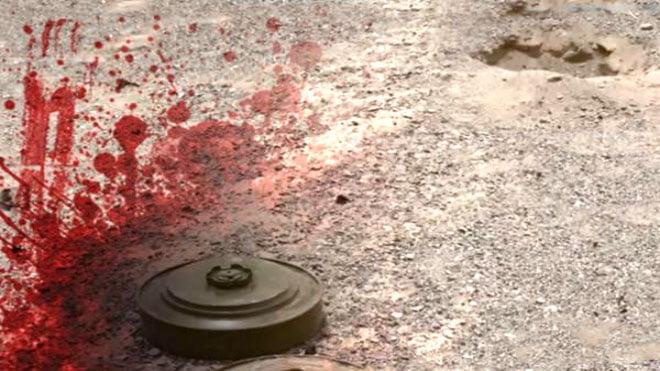 ناشطة يمنية : أكثر من 92 ألف يمني أصيبوا بألغام زرعتها جماعة الحوثي