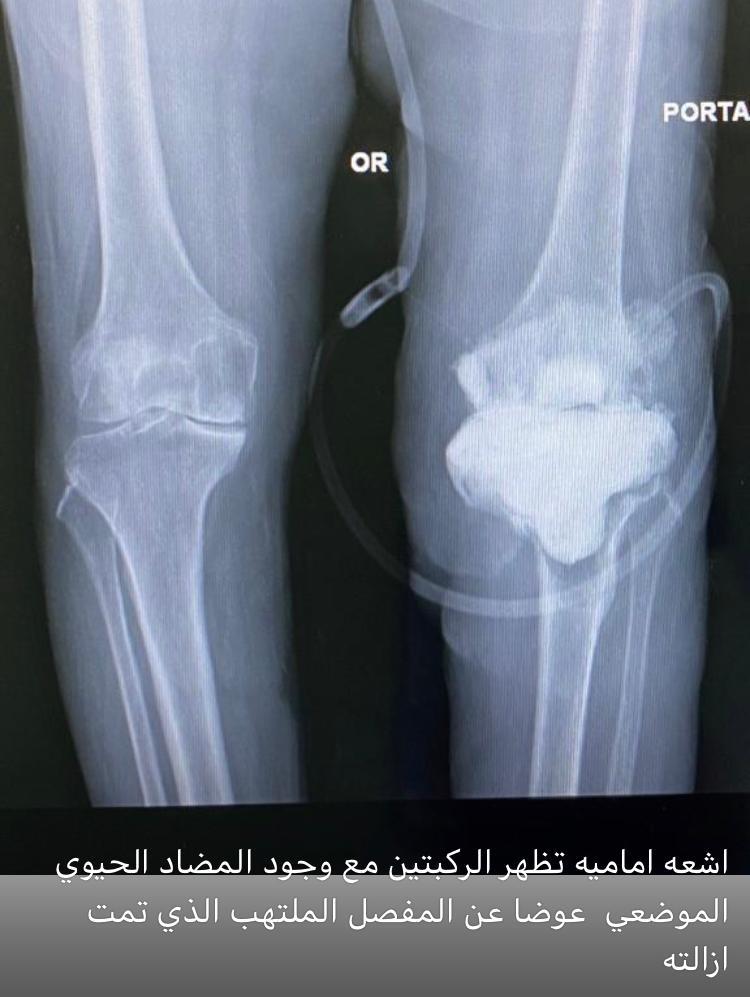 نجاح عملية استبدال مفصل الركبة لمريضة سبيعينة بحالة خطرة