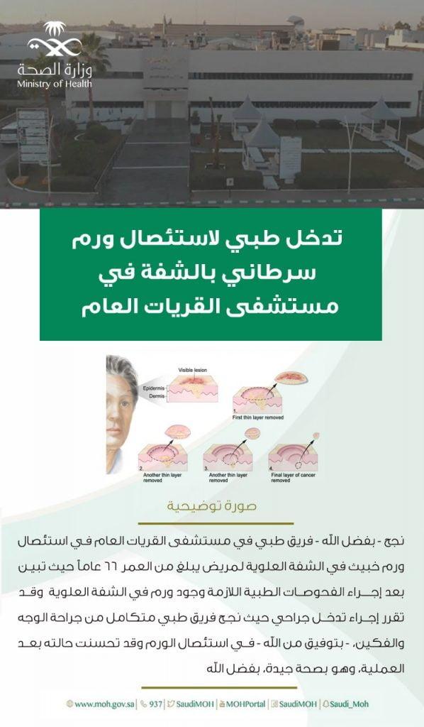 تدخل طبي لاستئصال ورم سرطاني بالشفة في مستشفى القريات العام