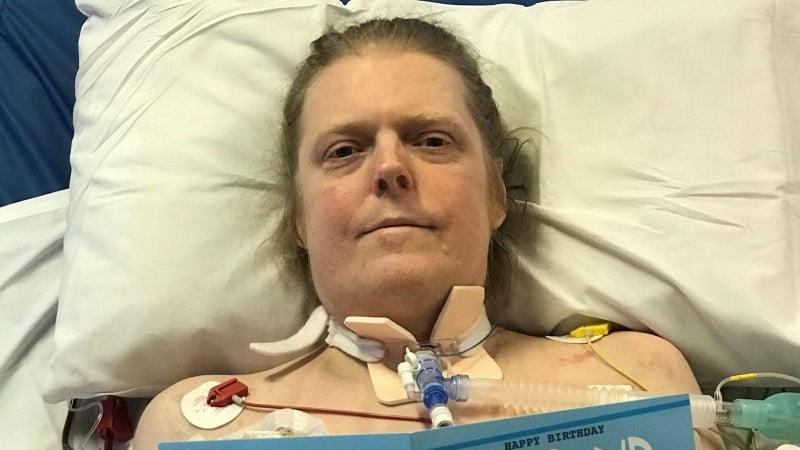 وفاة أشهر مقاوم لـ«كورونا» بعد 15 شهر علاج