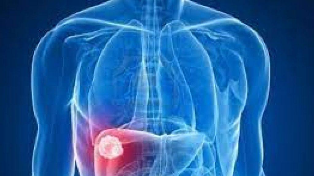 """""""الصحة"""" تُفعل أنشطة اليوم العالمي لالتهاب الكبد الفيروسي"""