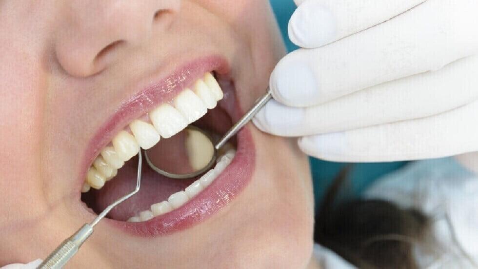 خبراء يكشفون عن علامات صحية خفية يمكن معرفتها من خلال النظر إلى الأسنان