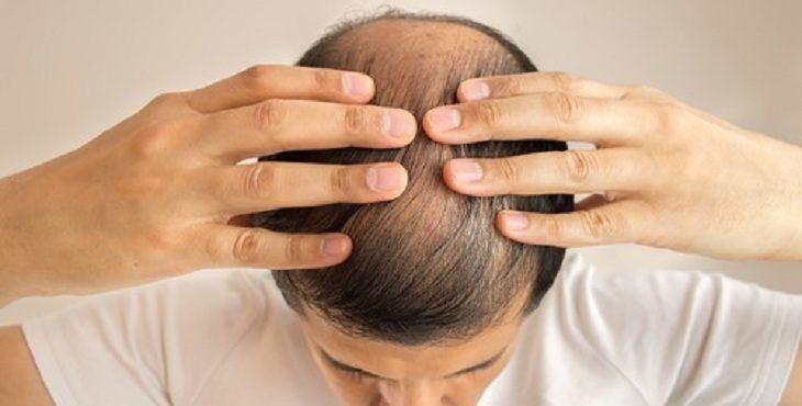 دراسة حديثة تكشف عن حل سحري للقضاء على تساقط الشعر والصلع الوراثي