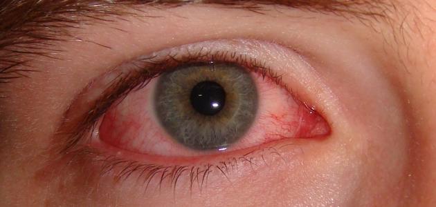 ما هي أسباب احمرار العين بشكل مفاجئ؟